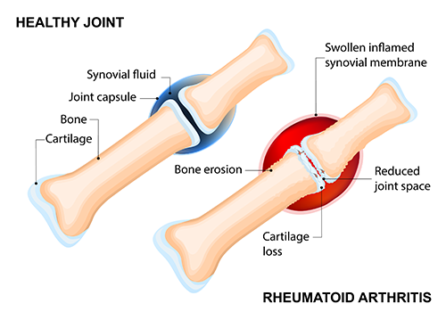 Rheumatoid arthritis of the wrist inflammation and pain