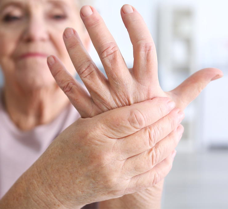 Learn More About Arthritis in the Wrist and Thumb