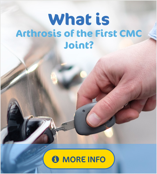 What is arthrosis of the first cmc joint?