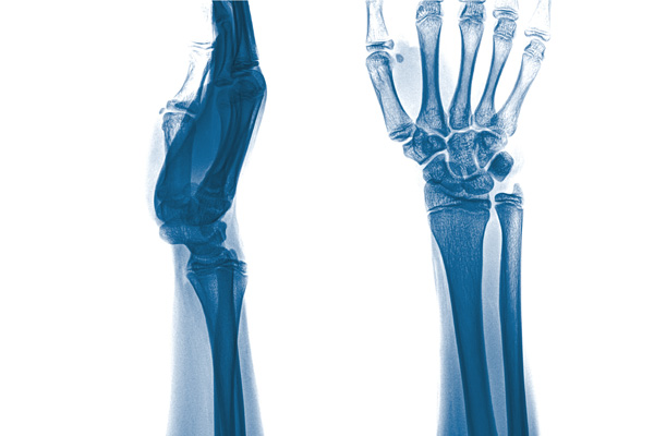 Perilunate dislocation occurs when the ulna bone detaches from the carpal bones in the wrist