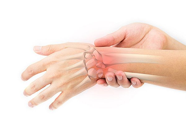 What Is a Sprained Wrist?