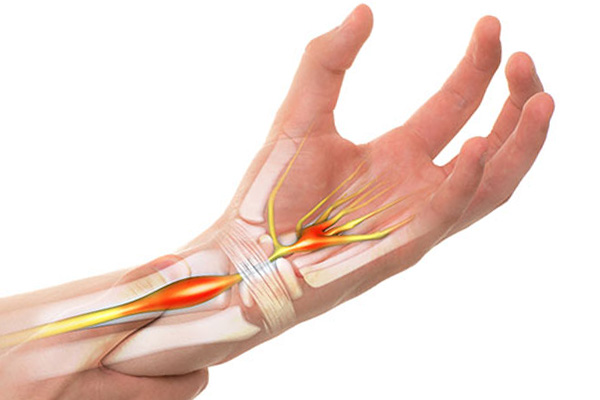 What is Carpal Tunnel Syndrome?