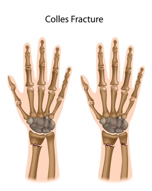 Colles' fracture of the radial bone