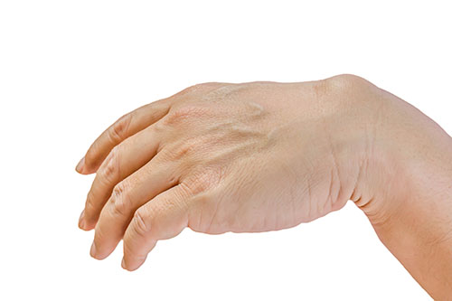 A Ganglion Cyst On The Wrist