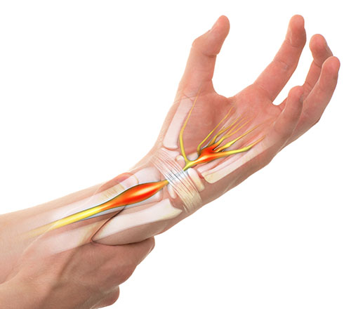 Pain in the hand from carpal tunnel syndrome