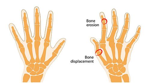 Ulnar deviation to the fingers and wrist