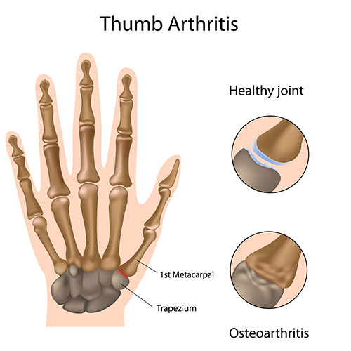 Arthrosis of the first cmc joint thumb arthritis