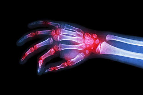 Rheumatoid arthritis inflammation in the wrist and joints wrist supports