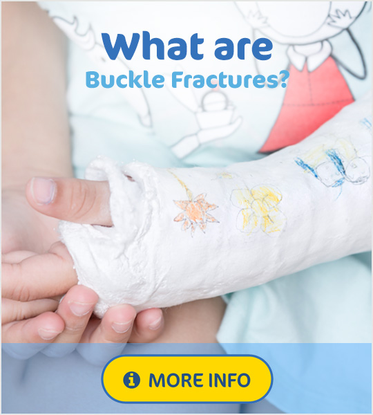 What are Buckle Fractures?